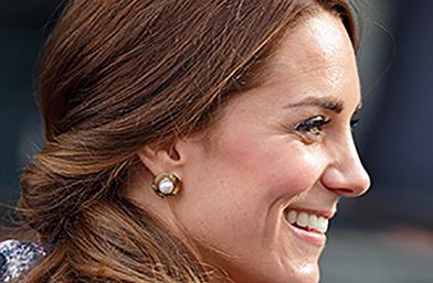 Носът на Кейт Мидълтън и още 9 от най-популярните форми при ринопластика