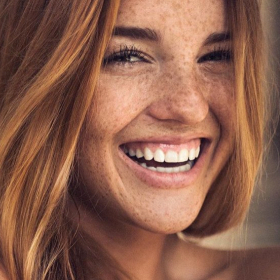 UNmark your face: Слънчеви лунички