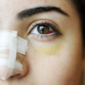 Култ: ринопластика за всички в Ливан
