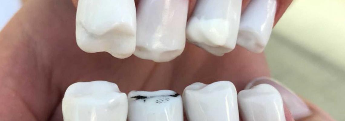 Dare U: Нокти като зъби?!