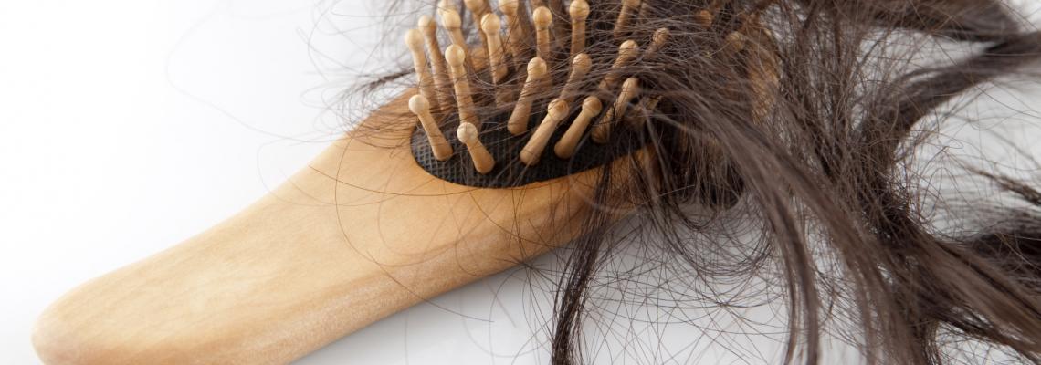 7 причини за косопада, извън генетичните